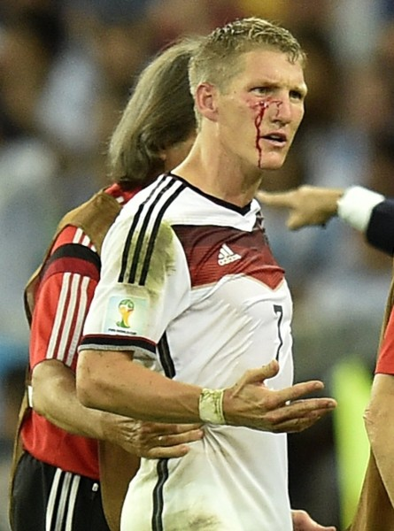 Bastian Schweinsteiger bleeding from his face in the World Cup final of 2014